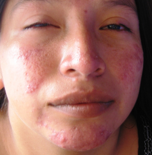 Shingles (Herpes Zoster) - MedicineNet